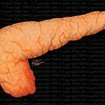 Поджелудочная железа. Лечение травами
