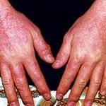 Лечение дерматита народными средствами