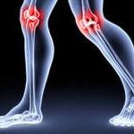 Остеоартроз лечение