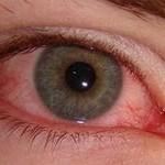 Воспаление глаза лечение