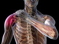 Лечение плечевого сустава народными средствами