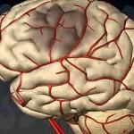 Сужение сосудов головного мозга