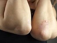 Сухая шершавая кожа на локтях