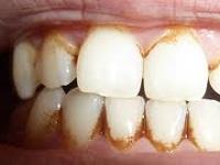 Как убрать зубной камень в домашних условиях