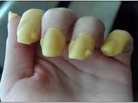 Что делать в домашних условиях если слоятся ногти