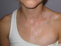 Белые пятна на коже после загара