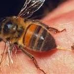Лечение укусами пчел — апитерапия