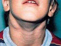 фото воспаленных лимфоузлов на шее