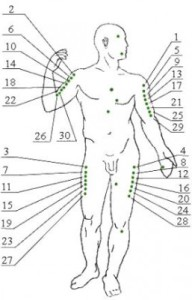 Точки ужаливания при апитерапие