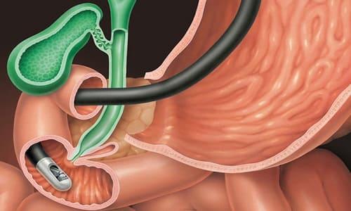 Симптомы и лечение дуоденита