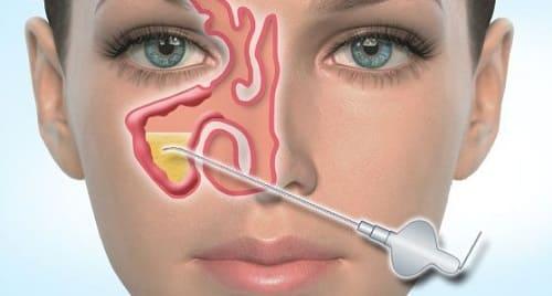 Симптомы хронического риносинусита
