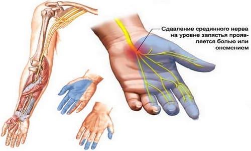 Причина покалывания пальца