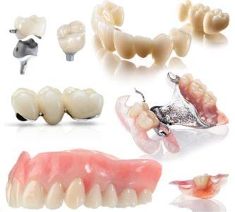 Съемное зубное протезирование: активно используется в современной ортопедической стоматологи
