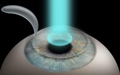 Лазерная коррекция: эффективный способ восстановления зрения