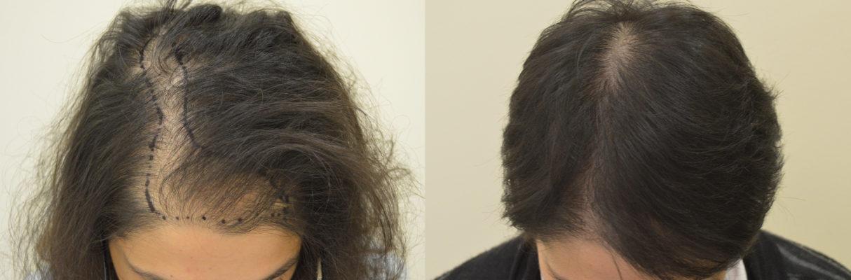Выбор метода пересадки волос для женщин