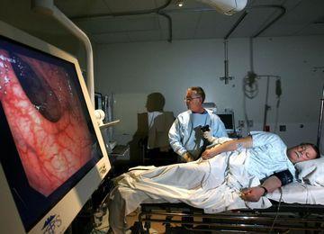 Колоноскопия кишечника: что представляет собой процедцра?